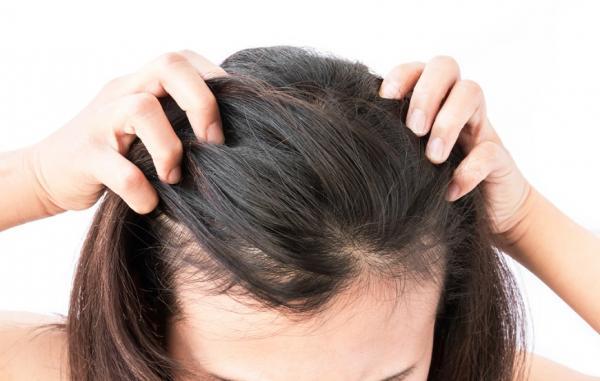 頭皮也會「初老」?居家養髮3招hold住髮量