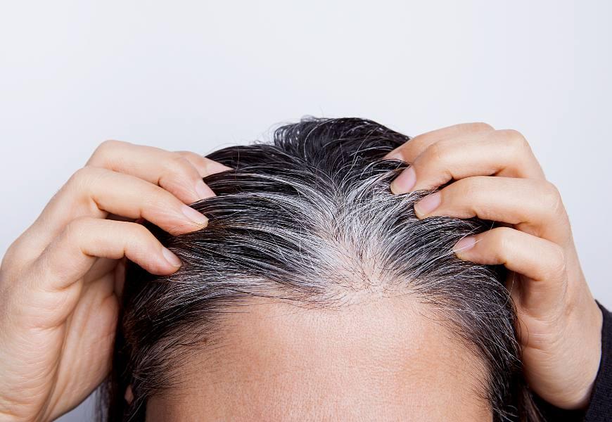 白髮為何生成?醫師公開3大白髮元凶,你犯了幾個